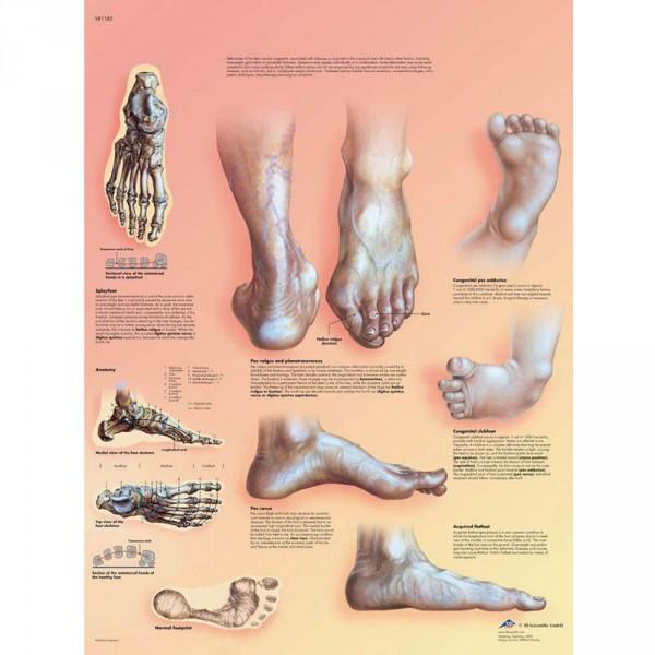poster 'Foute stand van de voet', 50 x 67 cm
